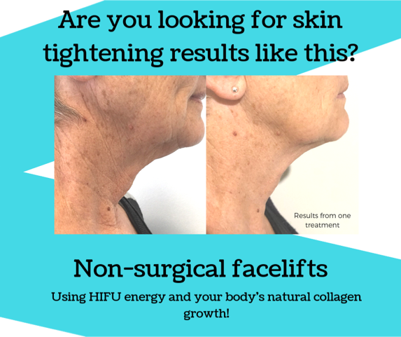 2nd versionare you looking for skin tightening results like this_